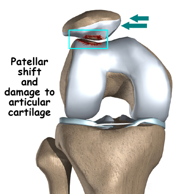 Fast recovery from patella femoral syndrome