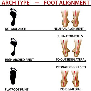 Symptoms And Treatment For High And Painful Arches